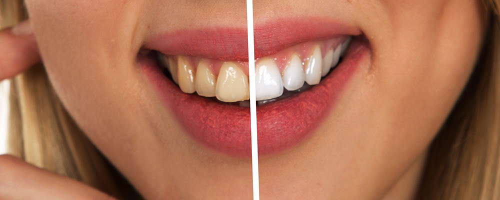 Antes y después de un tratamiento de blanqueamiento dental